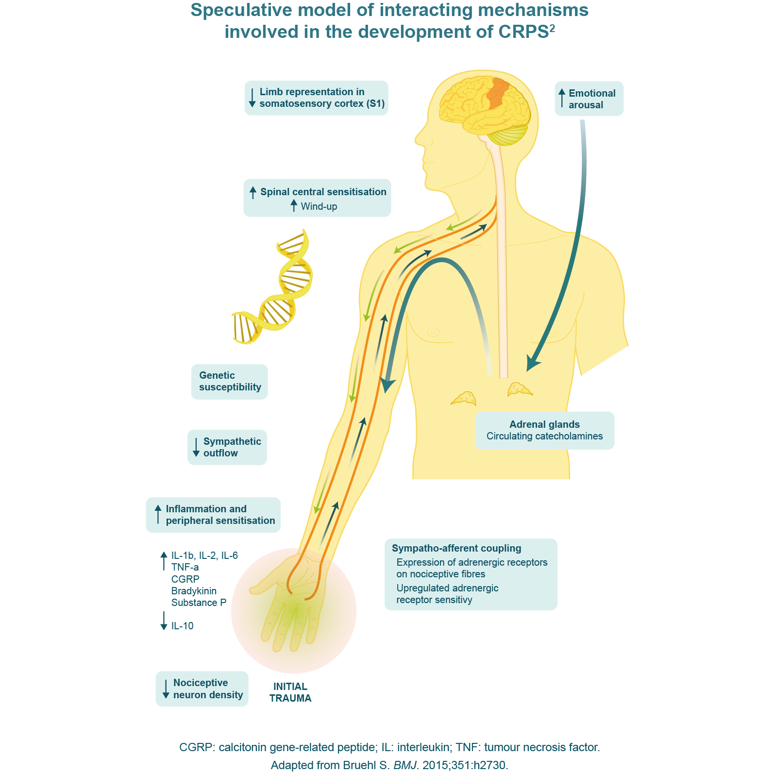 Speculative model of interactive mechanisms involved in the development of CRPS