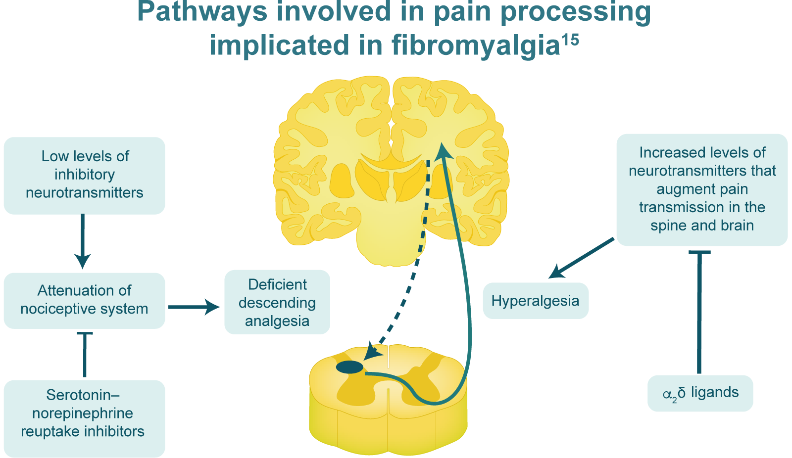 Pathways involved in pain processing implicated in fibromyalgia