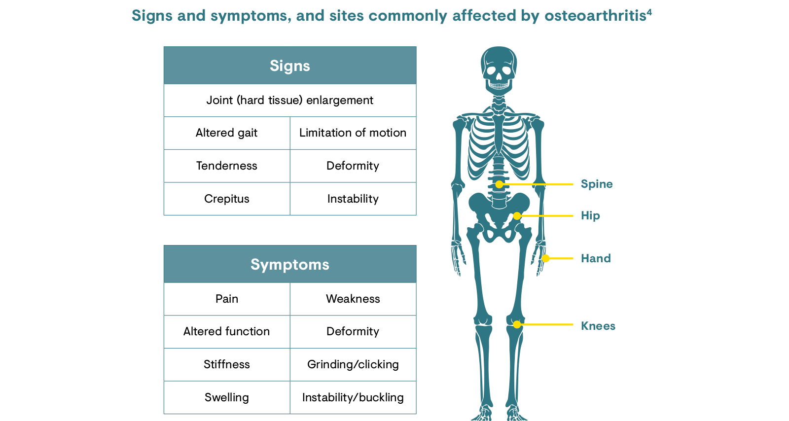 Signs and symptoms and sites commonly affected by osteoarthritis