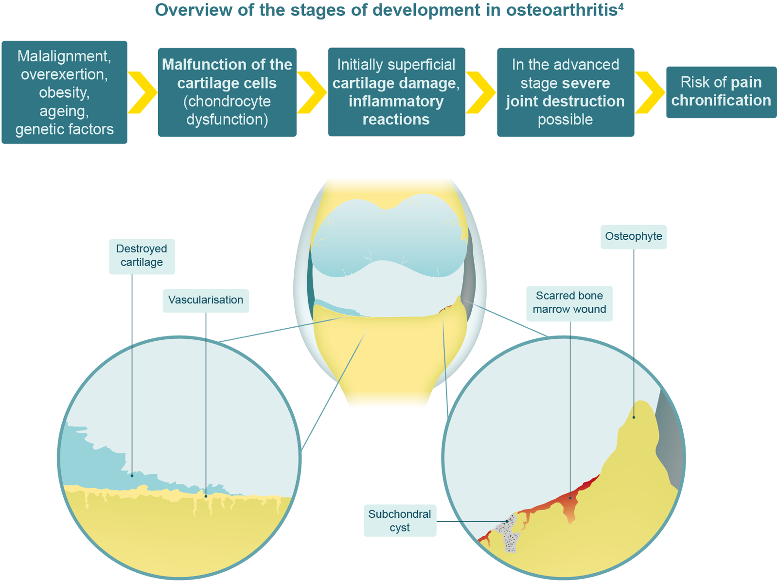 Overview of the stages of development in osteoarthritis